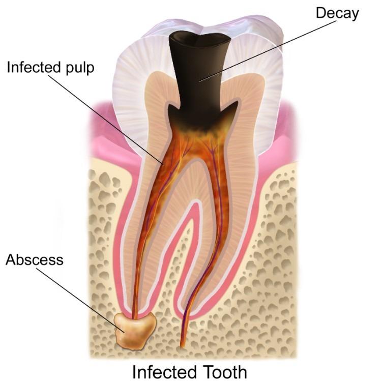 cavity-tooth-1