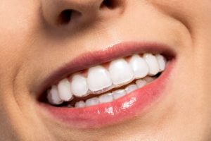 clear-aligners-treatment
