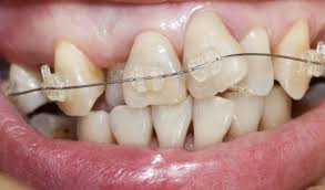 crooked-front-teeth-severe