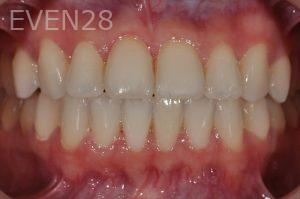 Aria-Irvani-Invisalign-Clear-Aligners-after-10