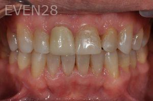 Aria-Irvani-Invisalign-Clear-Aligners-after-2