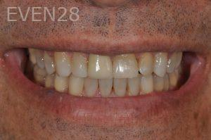Aria-Irvani-Invisalign-Clear-Aligners-after-4