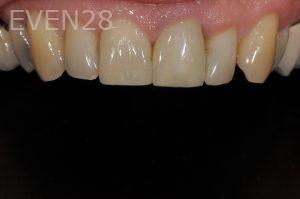 Aria-Irvani-dentall-crowns-after-1