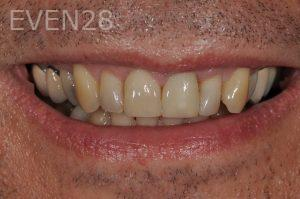 Aria-Irvani-dental-crowns-after-1b