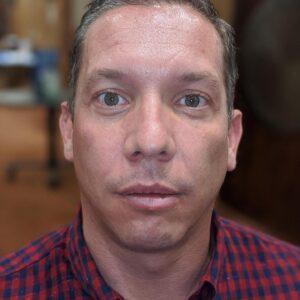 Kenneth-Burson-dentist