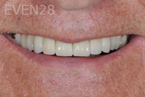 aria-irvani-dental-crowns-after-1