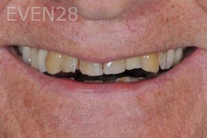 aria-irvani-dental-crowns-before-1