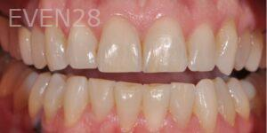 aria-irvani-invisalign-clear-aligners-after-1